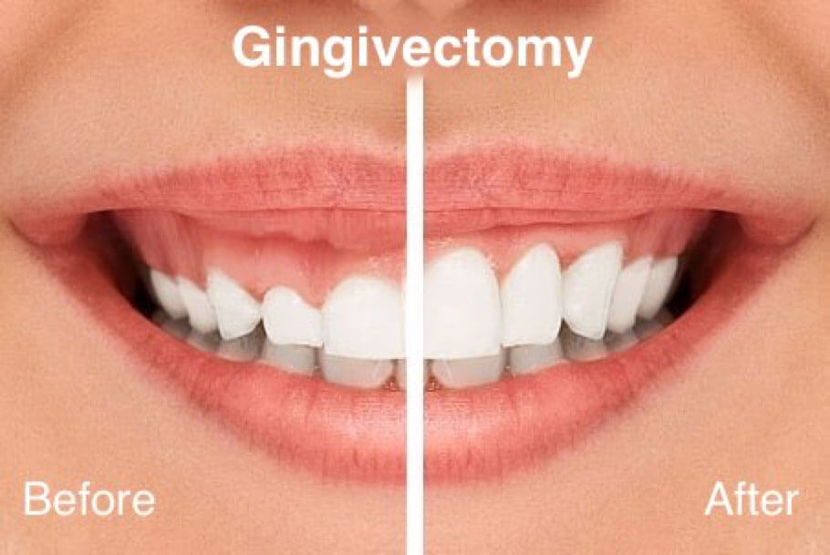 Gingivectomie